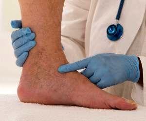 لخته شدن خون در پا نشانه چه بیماری است؟