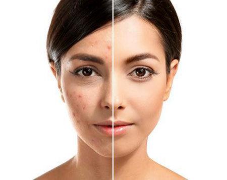روش های طبیعی درمان جوش صورت