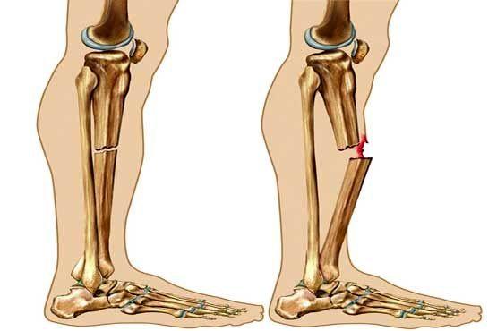 اینگونه پوکی استخوان را درمان کنید