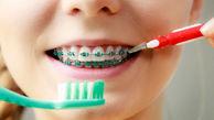 چگونه با ارتودنسی نخ دندان بکشیم ؟