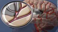 کاهش نمک غذا برای افراد مبتلا به دیابت