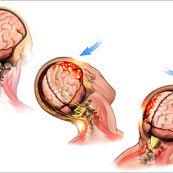 ضربه مغزی چطور اتفاق می افتد؟