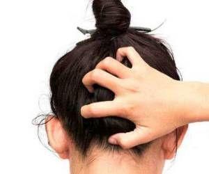 علت خارش کف سر و درمان طبیعی آن