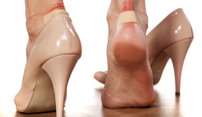 چگونگی درمان تاول پا