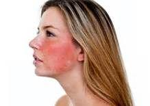 راه حلی ساده برای رفع قرمزی پوست و تاول