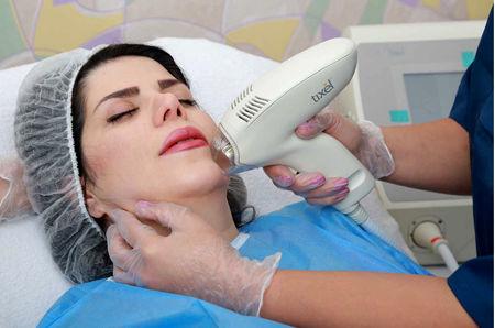 کاربرد دستگاه تیکسل در جوان سازی پوست را بدانید